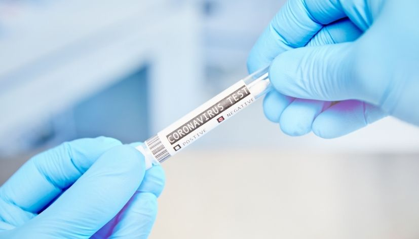 PCR test to release glasgow